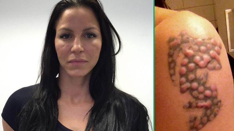Zarah Sjögrens arm blev förstörd efter en tatueringsborttagning