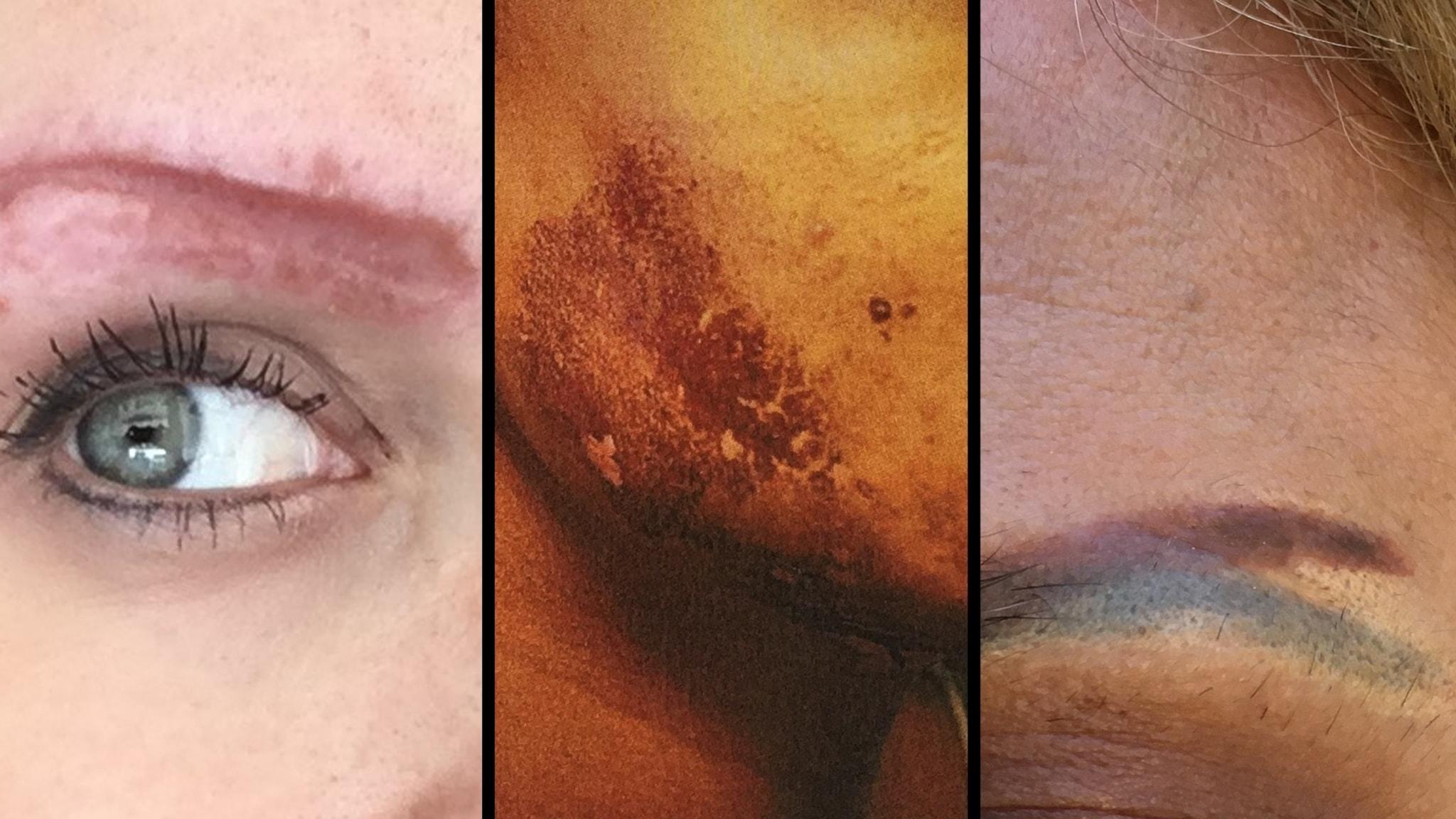 kosmetisk tatuering eskilstuna