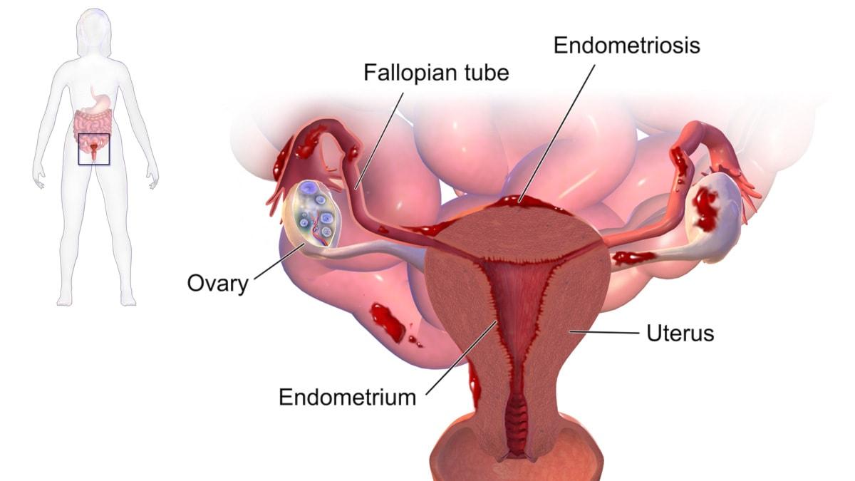 gravid ont i ena äggstocken