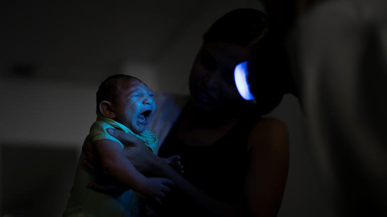 Bild på ett barn som kan ha drabbats av Zikaviruset. Foto: Felipe Dana/AP/TT