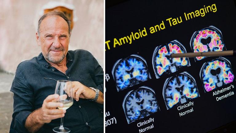 Kollage av Henrik Frenkel och en bild på hjärnröntgen som visar skillnader på hjärnor med respektive utan alzheimers.
