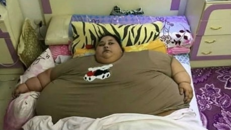 Världens tyngsta kvinna, 500 kilo tunga 36-åriga egyptiskan Eman Ahmed Abd El Aty, ska opereras i Indien betalt via insamling på nätet.