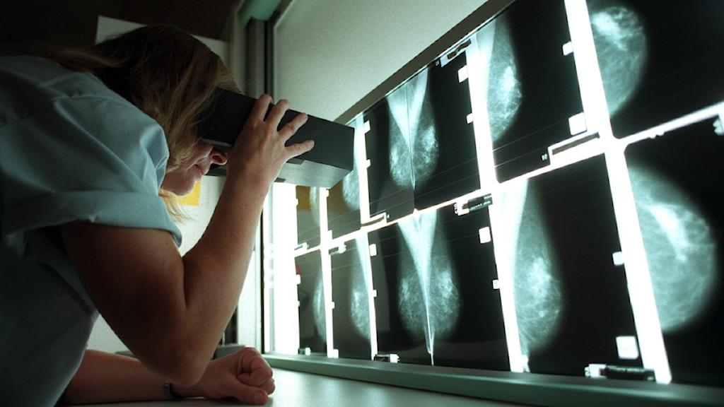 Nainen tutkii röntgenkuvia