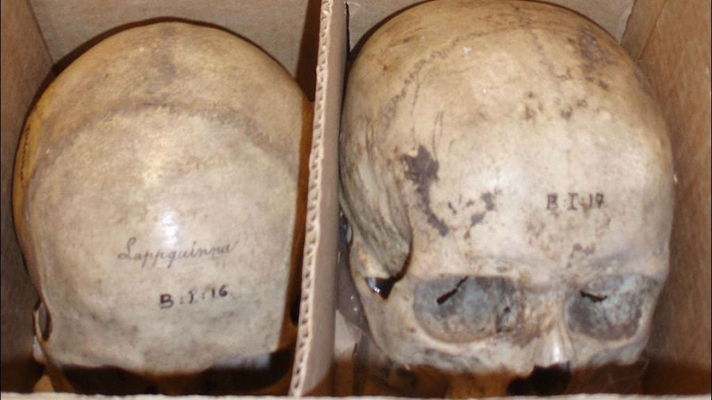 Karolinska Institutet har tiotals finländska kranier som Gustaf Retzius och andra forskare tog med sig från forskningsresor till Finland på 1800-talet. Forskarna plundrade bland annat övergivna kyrkogårdar i rasforskningssyfte. På bilden ett samiskt kranium på Lunds universitet.