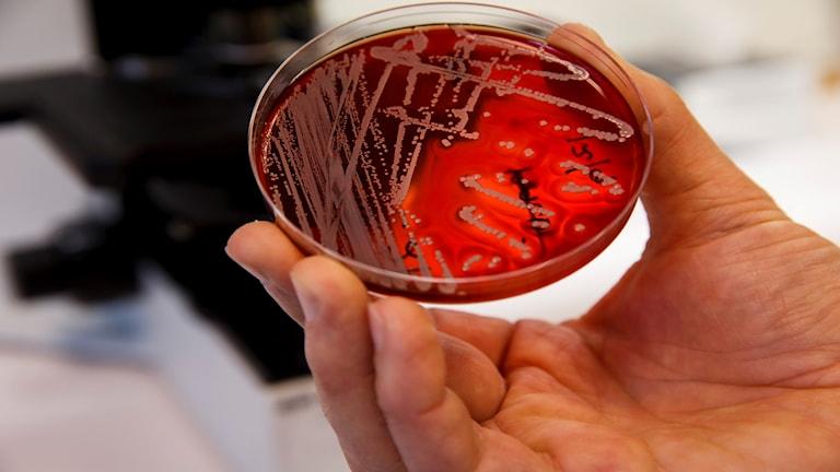 bakteeriviljelmä