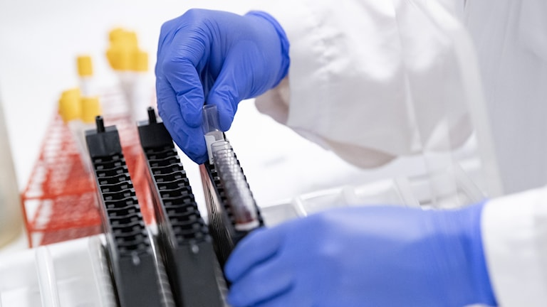 Researchers prepare blood samples to be analsed for Covid-19 antobodies.