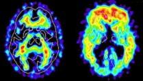 Шведы будут бороться с болезнью Альцгеймера
