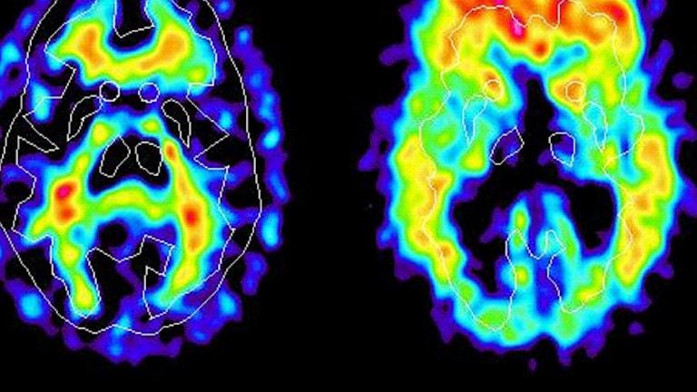 Bild på en hjärna med en PET-camera.