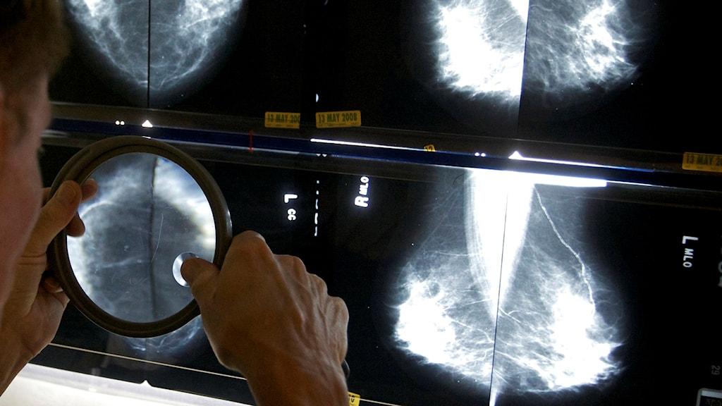 Doktori dikhel pe patretura vaj si kolinesko cancer