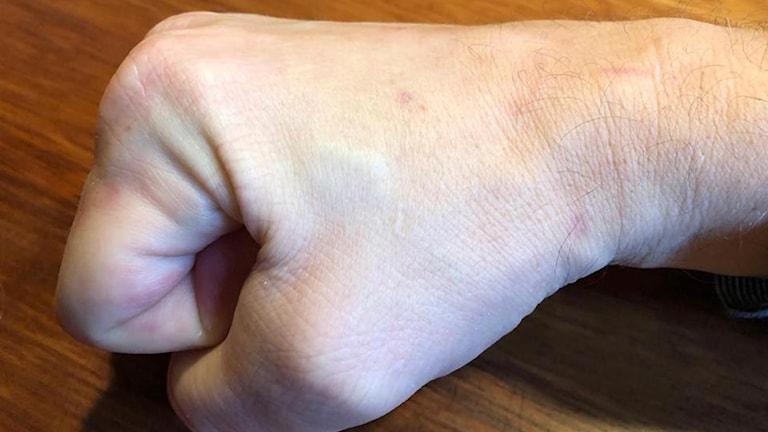 Björn Hagström har opererat in ett chip i huden.