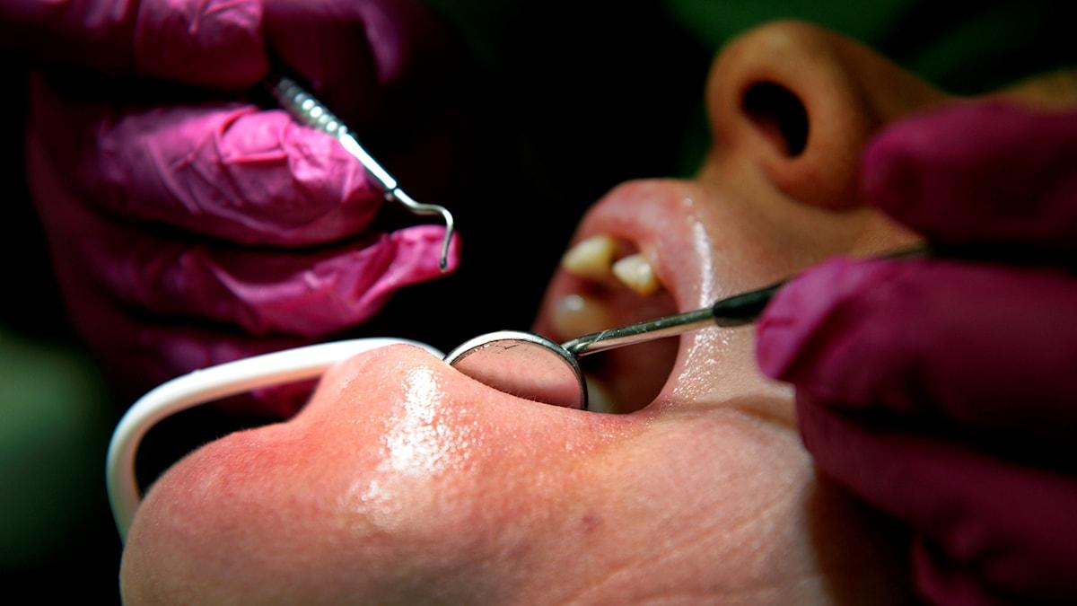 Närbild på tandläkares händer som undersöker en patient.