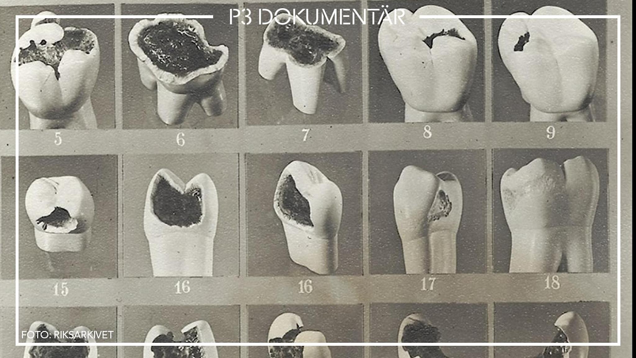 Bilder från Riksarkivet på trasiga tänder efter att experimenten avslutades.