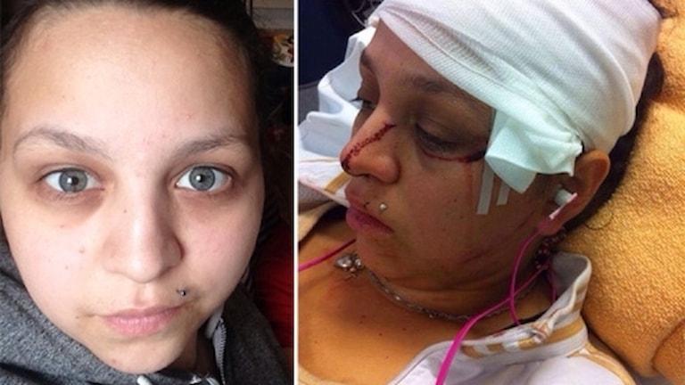 Melinda Olivares, före och efter attacken.