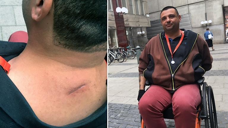 Hassan Zubier blev knivhuggen fyra gånger under det misstänkta terrordådet i Åbo den 18 augusti.