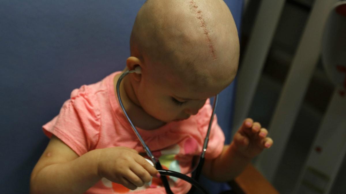 Cancersjuka Talia Pisano lyssnar på sitt hjärta. Foto: AP Photo/Christian K. Lee/TT