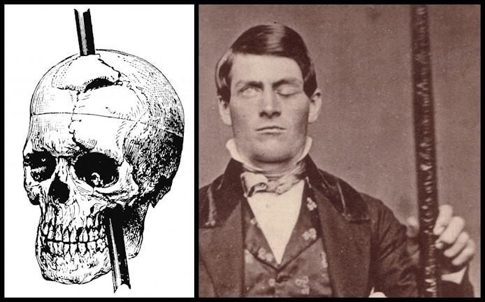 T v en avbildning av Phineas Gages skalle av hans läkare John Howard från 1869 och t h en bild av Phineas Gage med järnspettet.