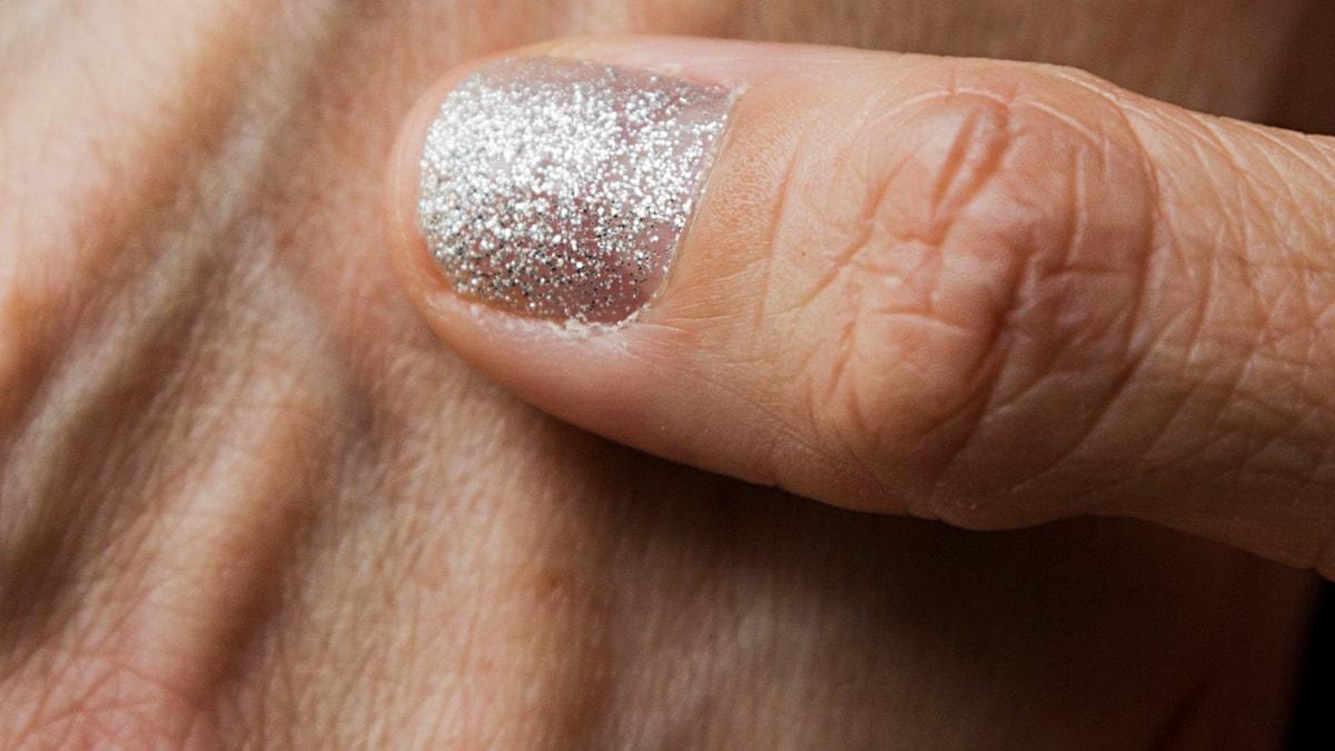 Fint nagellack döljer fult sår. Foto: Privat.