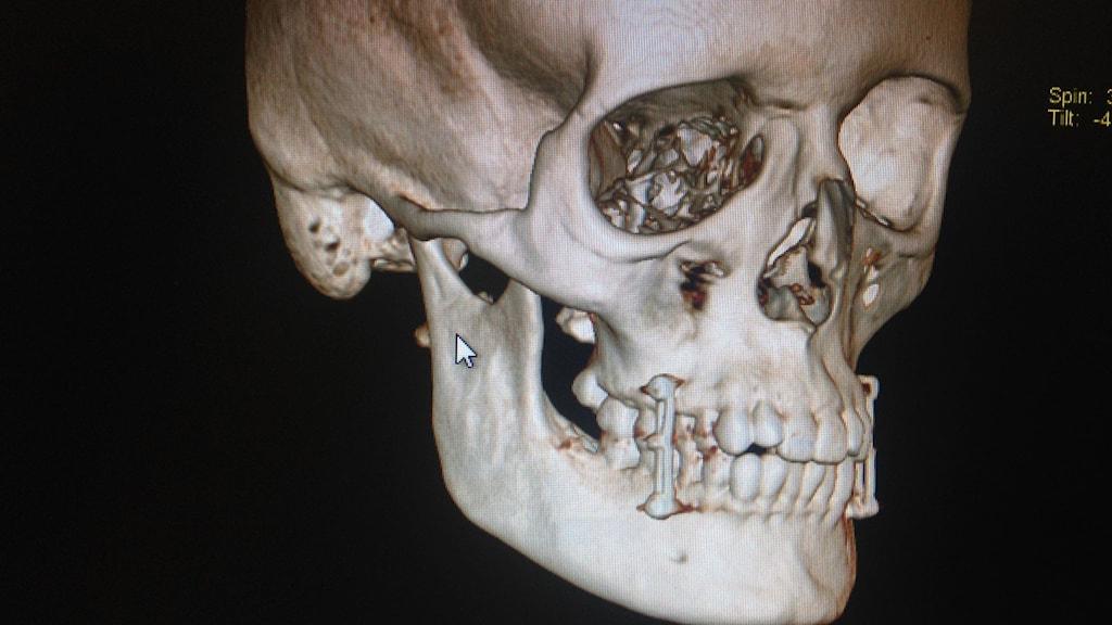 Lotten Collin fick sina käkar ihopskruvade med ståltråd efter en cykelolycka i São Paulo. Så här såg den skräckinjagande röntgenbilden ut. Foto: Lotten Collin/Sveriges Radio