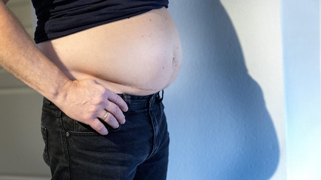 En överviktig man visar magen.