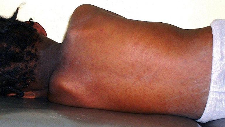 Mörkt barn med rödprickig rygg.