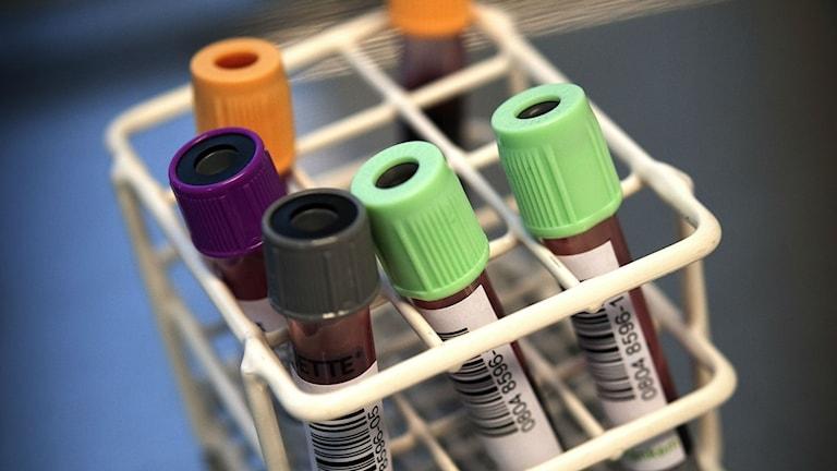 Studier som hittar bisfenol A i blodprov kan vara missvisande. Foto: Dan Hansson / TT