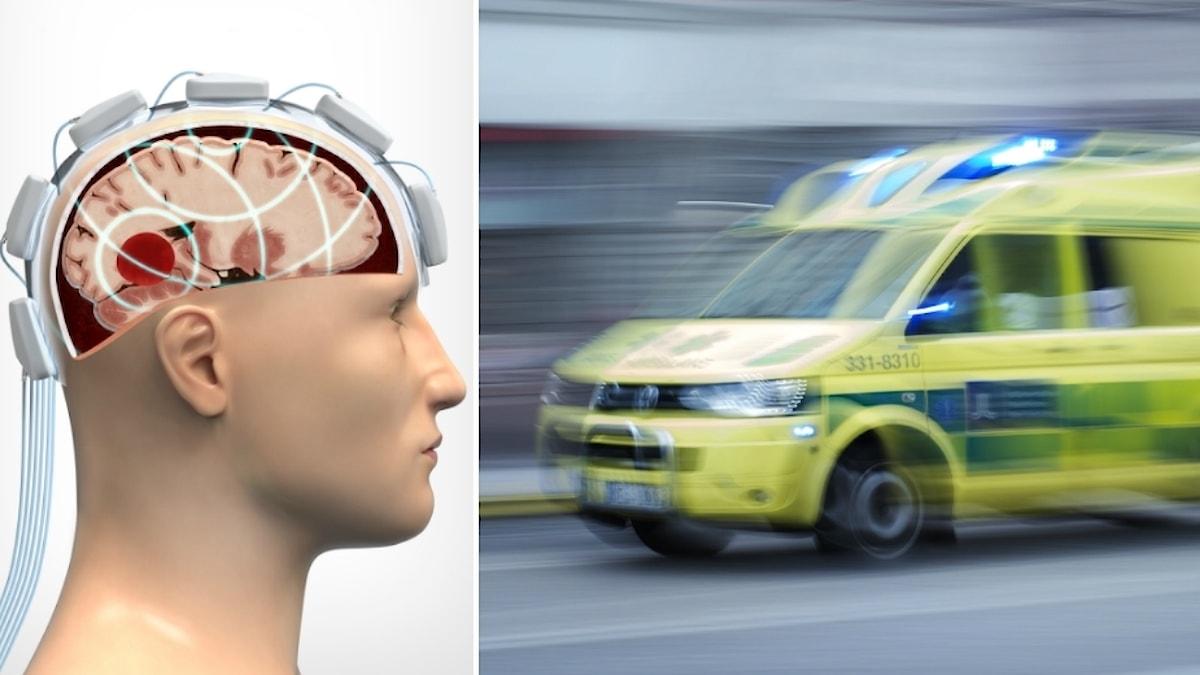 Kollage av en så kallad mikrovågshjälm och en ambulans