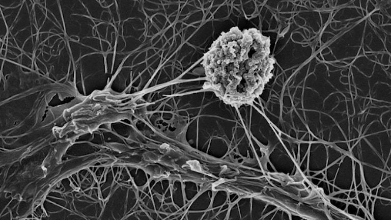 En inducerad Nk-cell attackerar en leukemicell