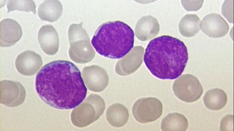 Leukemiceller i blod. Foto:  Christaras A (CC BY 2.5)