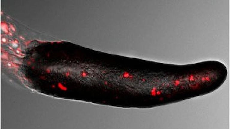 En bild på den maskliknande struktur av amöbor som har gått ihop för att försvara sig.