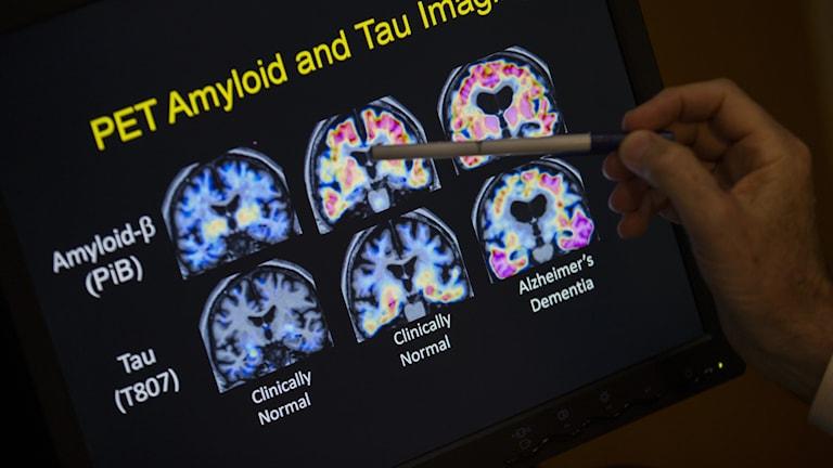 Bilder på tvärsnitt av hjärnor i en Alzheimersstudie.