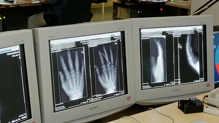 Röntgenbild av hand