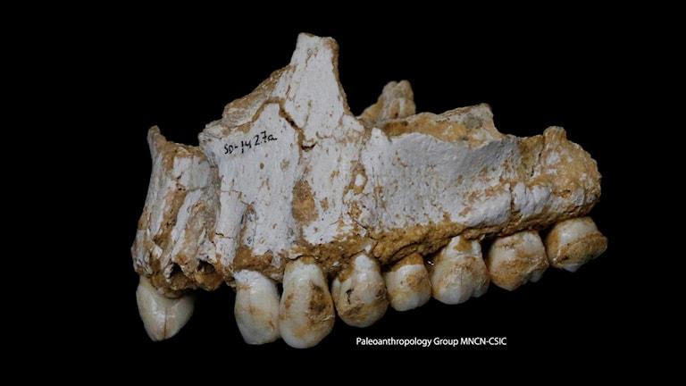 Tänder med tandsten från en neandertalare.
