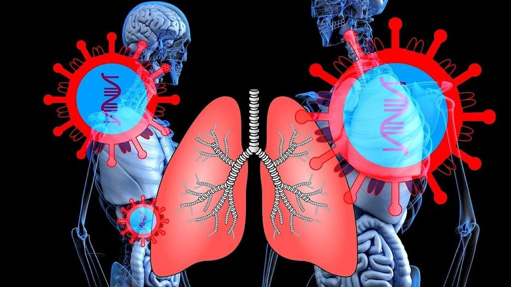 En schematisk bild över två människokroppar, samt ett lungpar och coronavirus.