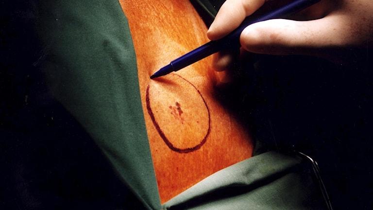 En hand med penna markerar med en ring runt cancern på huden.