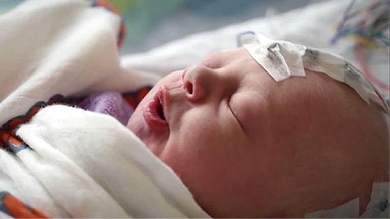 Ett spädbarn ligger med slutna ögon och har elektroder på huvudet som ska mäta hjärnaktiviteten.