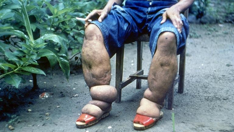Elefantiasis är en försummad tropisk sjukdoma som enligt WHO snart kan vara utrotad