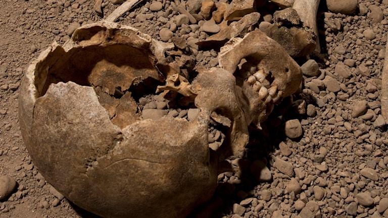 Brunt trasigt människokranium i brun jord.