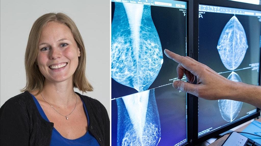 Bildmontage: Theodora Kunovac Kallak och en läkare som tittar på röntgenbilder på bröst.