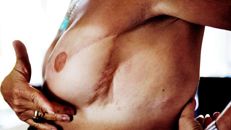 Bröst med operationsärr
