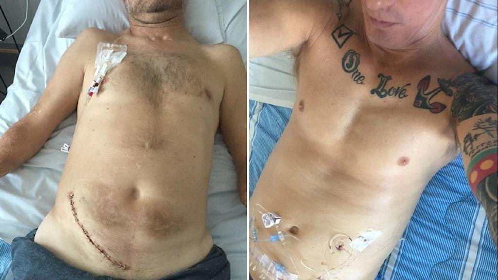 En delad bild på två manliga överkroppar. Den ena har ett operationsärr över magen.
