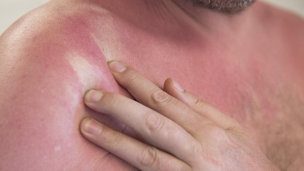 Mycket rödbränd hud och en hand som drar på solbrännan så det bildas vita streck i allt det röda.