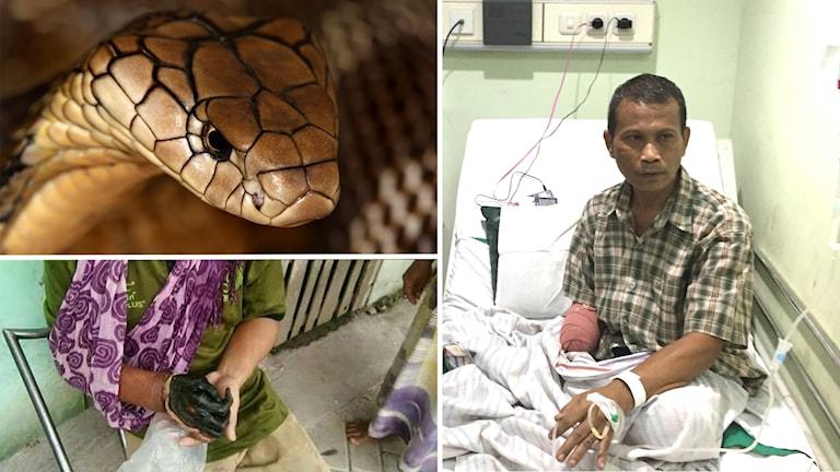 Tre bilder: Ett ormhuvud, en svartnad människohand och en man som sitter i en sjukhussäng med ena handen amputerad.