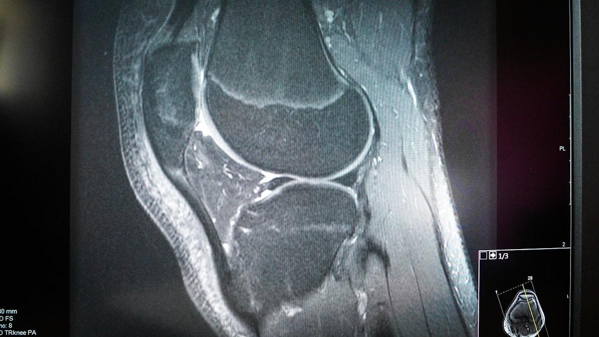 En svartvit magnetklamera-bild över en knäled