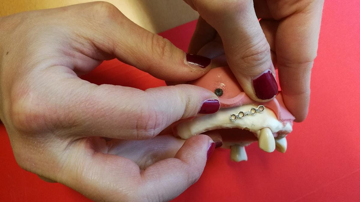 käkprotes med implantat