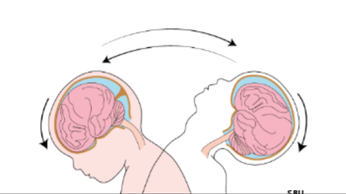grafik över hur ett barn huvud böjs vid skakning