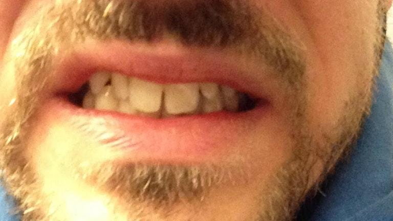 Kims tänder. Foto: Privat