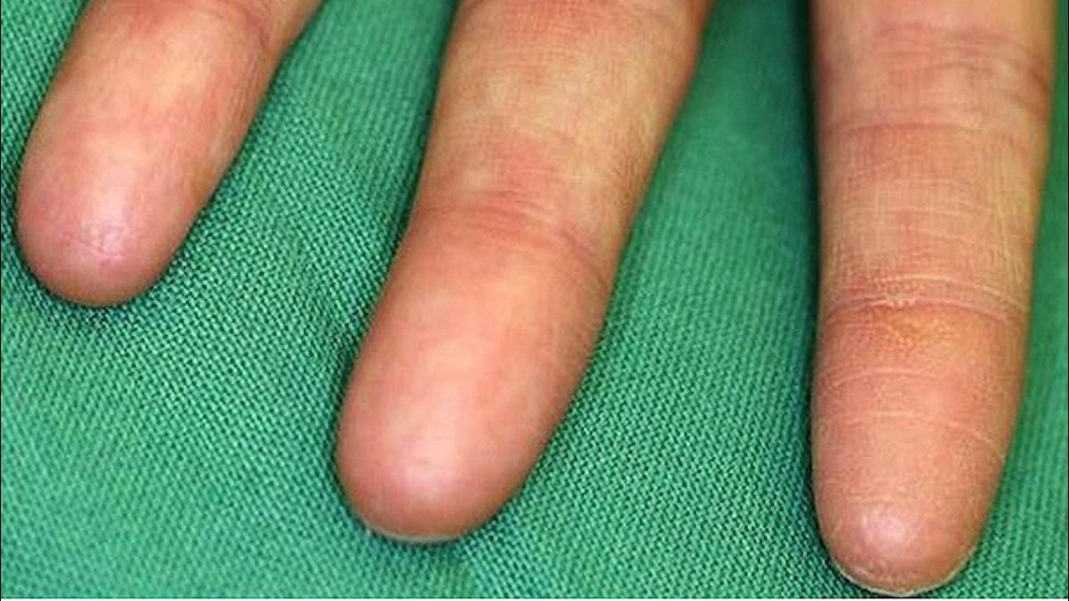 Inga fingeravtryck. Foto: Sprecher et al.