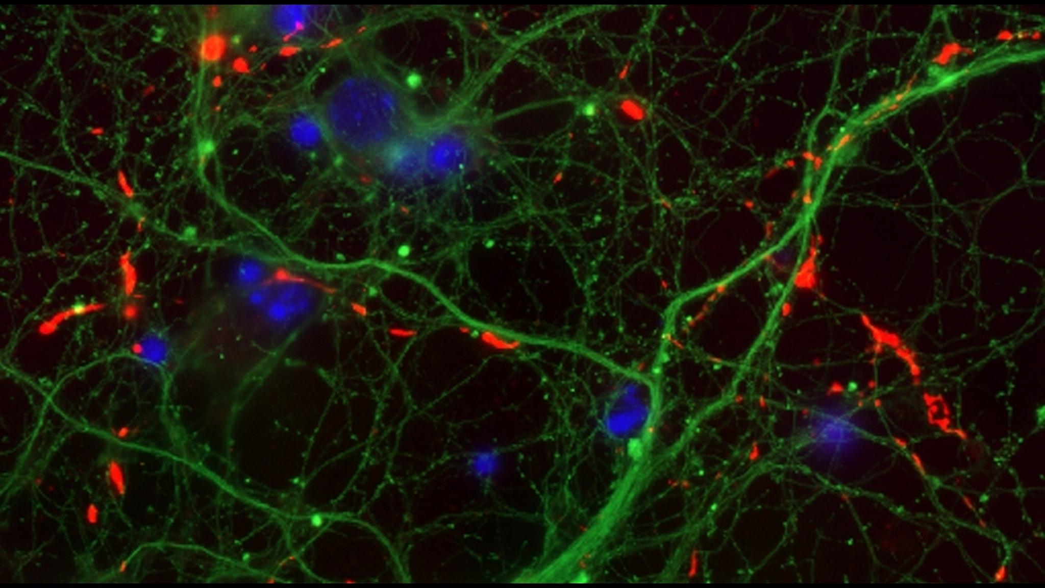 Mikroskopbild på nervceller.