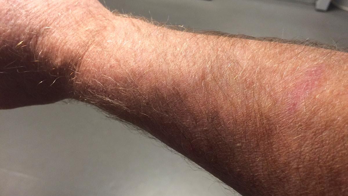 En underarm från en man.