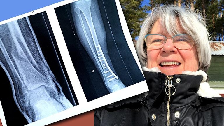 Eva Cronsioe och röntgenbilder på hennes brutna ben före och efter operationen. På röntgenbilden syns profilen av en titanskiva och titanskruvar i benet.